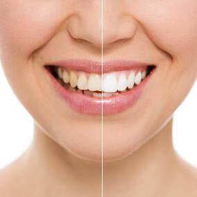 Teeth Whitening El Paso, TX